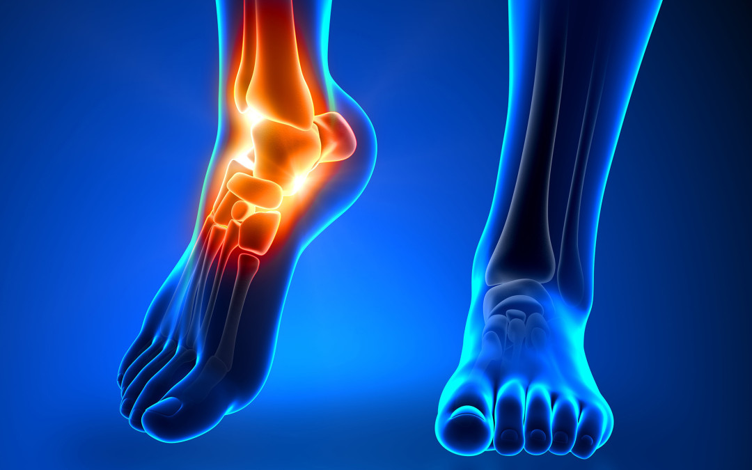 FOOT PAIN – PART 3 OF 3