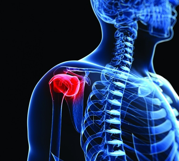 How to Prevent Rotator Cuff Injuries, Through Corrective Exercise Programming (Part 1)